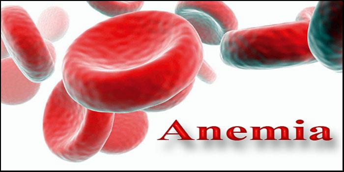 Anemia Kekurangan Zat Besi