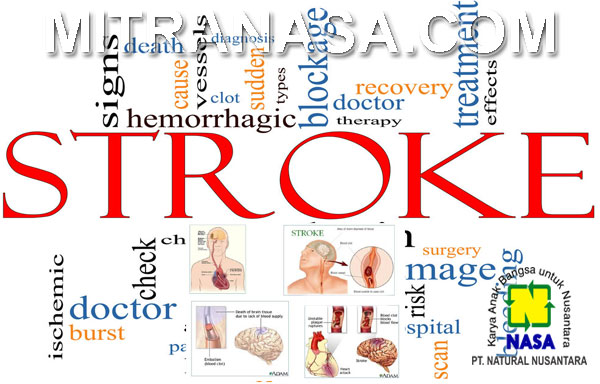 Produk Nasa Untuk Mengatasi Penyakit Stroke